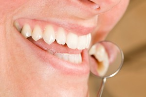Your Dallas prosthodontist recommends good oral hygiene.